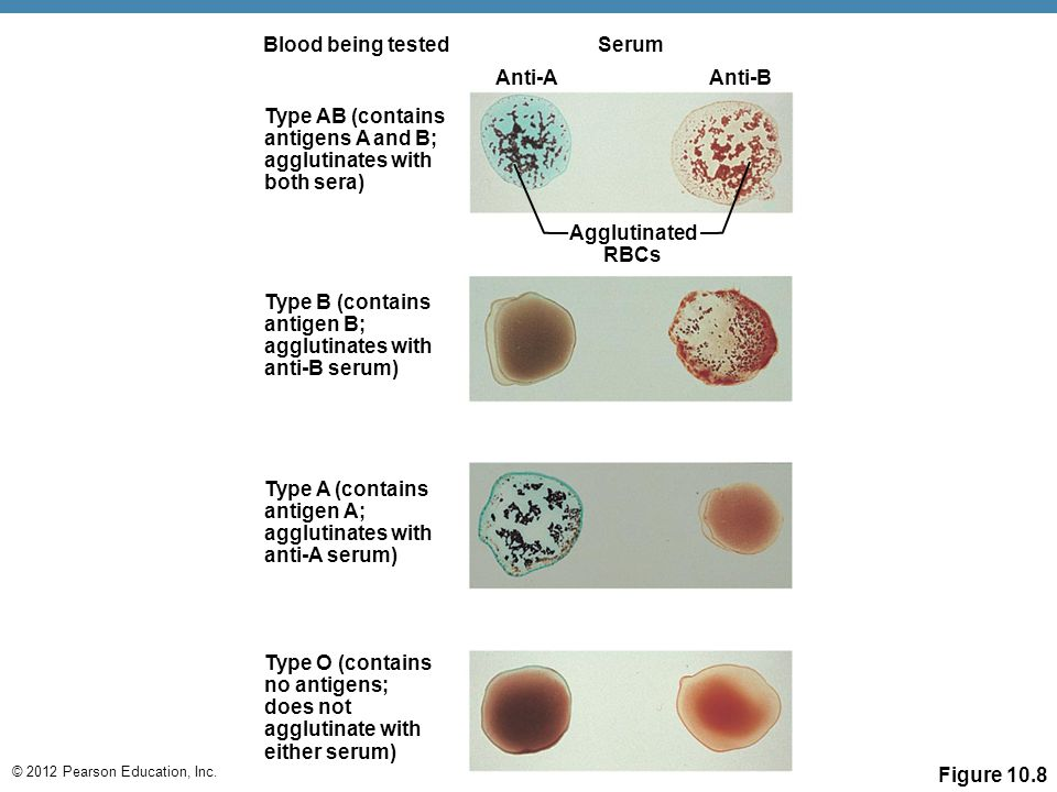 © 2012 Pearson Education, Inc. Figure 10.8 Serum Anti-A Anti-B Agglutinated RBCs Blood being tested Type AB (contains antigens A and B; agglutinates w