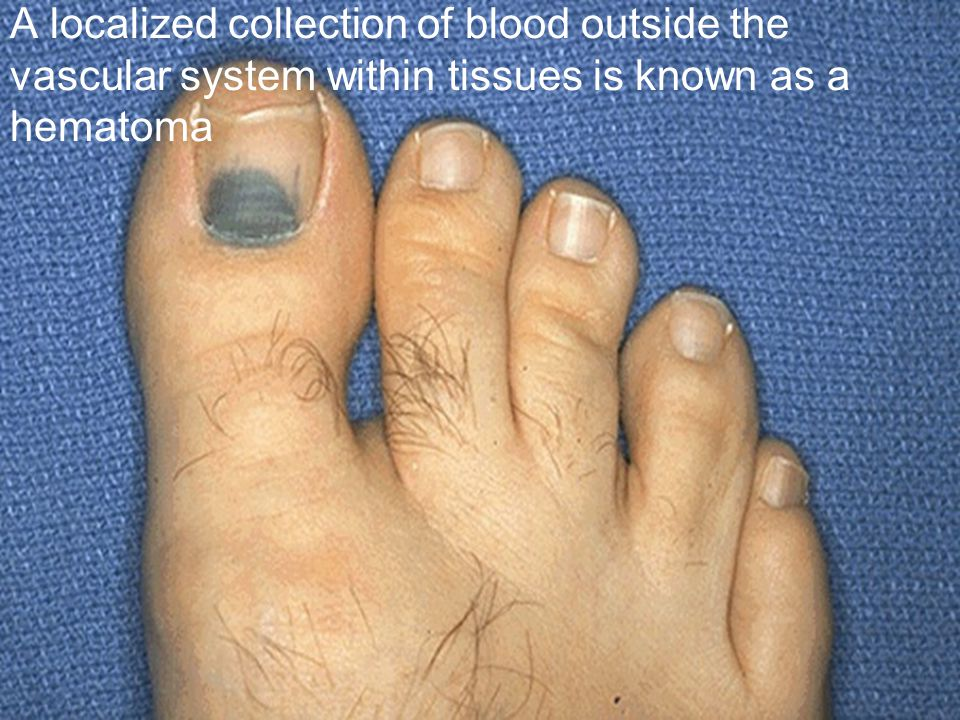 A localized collection of blood outside the vascular system within tissues is known as a hematoma