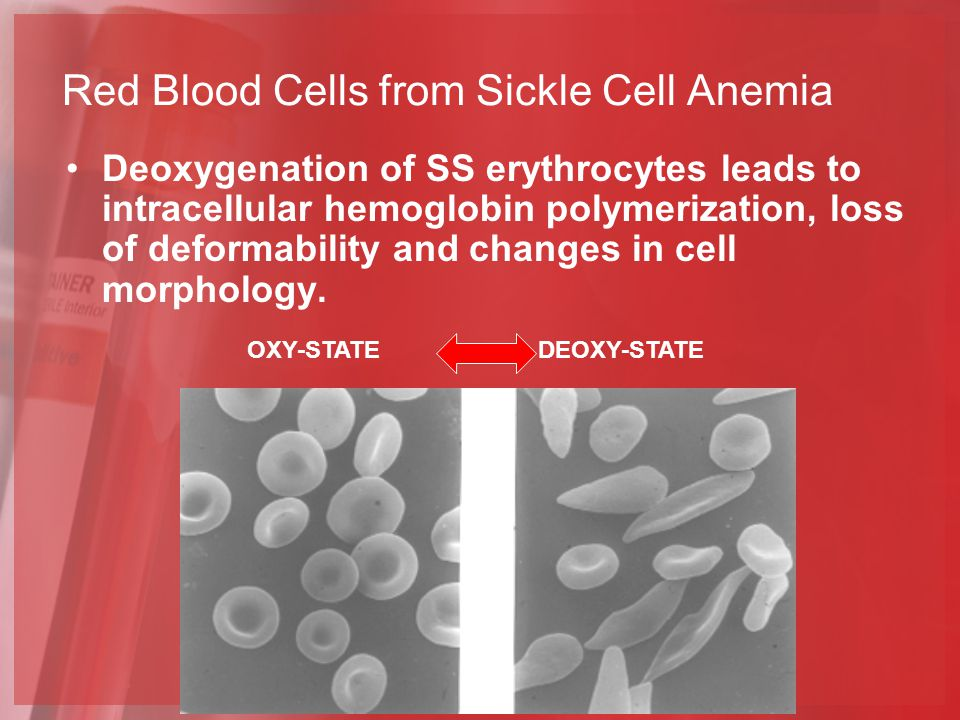 Red Blood Cells from Sickle Cell Anemia OXY-STATEDEOXY-STATE Deoxygenation of SS erythrocytes leads to intracellular hemoglobin polymerization, loss of deformability and changes in cell morphology.