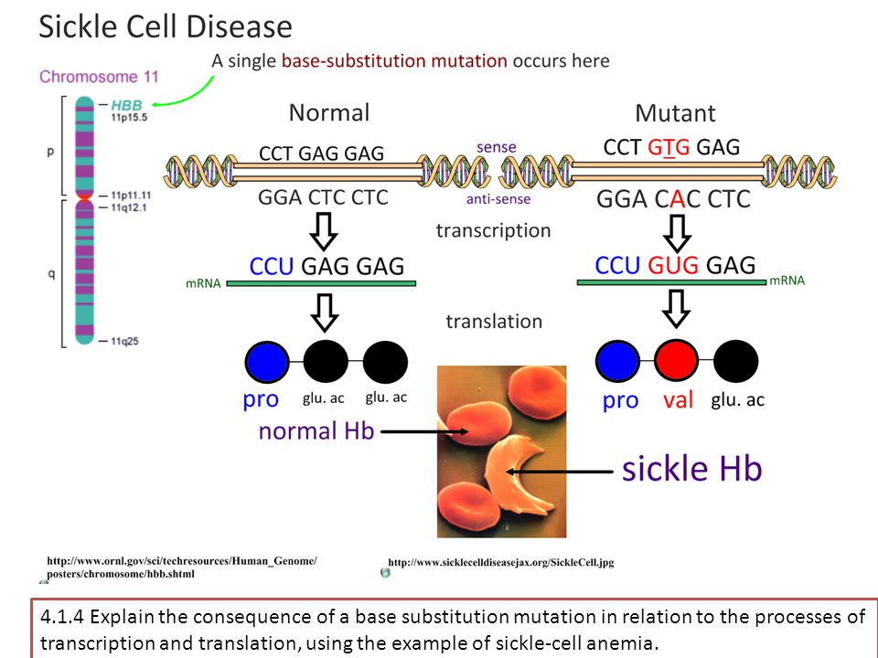 4.1.4 Explain the consequence of a base substitution mutation in relation to the processes of transcription and translation, using the example of sickle-cell anemia.