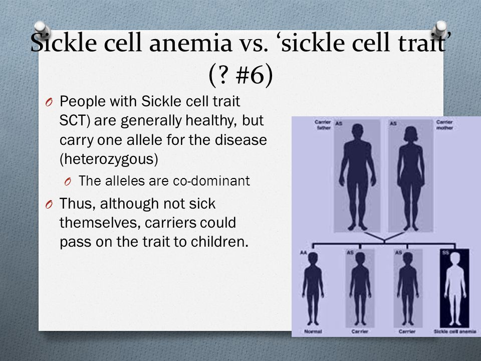 Sickle cell anemia vs. 'sickle cell trait' (.
