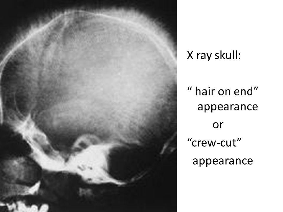 "X ray skull: "" hair on end"" appearance or ""crew-cut"" appearance"