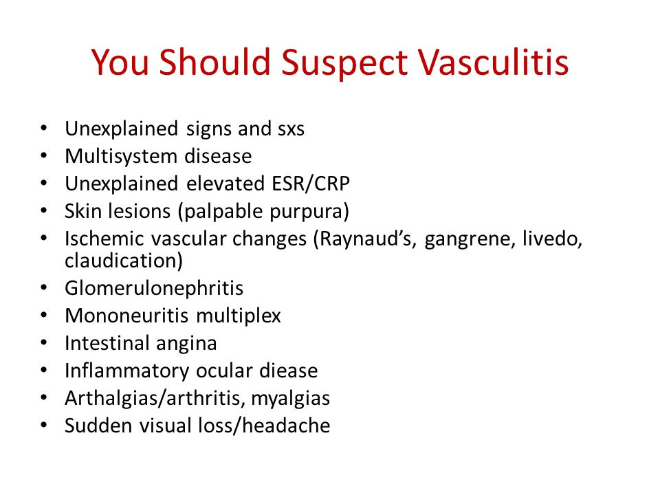 You Should Suspect Vasculitis Unexplained signs and sxs Multisystem disease Unexplained elevated ESR/CRP Skin lesions (palpable purpura) Ischemic vasc