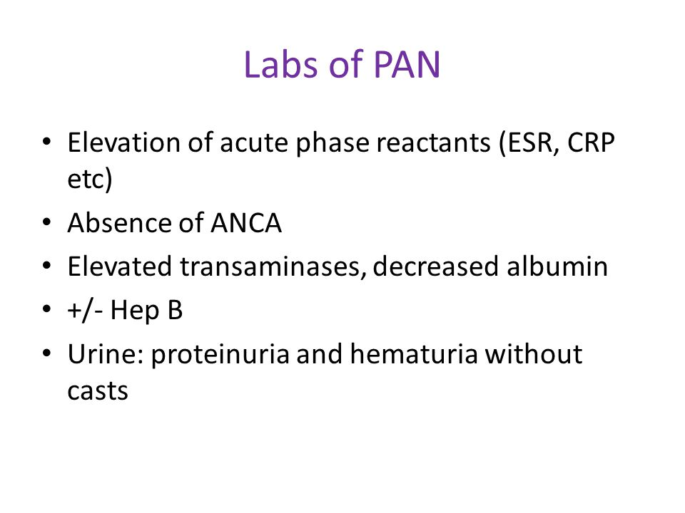 Labs of PAN Elevation of acute phase reactants (ESR, CRP etc) Absence of ANCA Elevated transaminases, decreased albumin +/- Hep B Urine: proteinuria a
