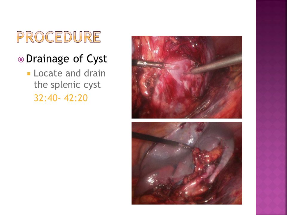  Drainage of Cyst  Locate and drain the splenic cyst 32:40- 42:20