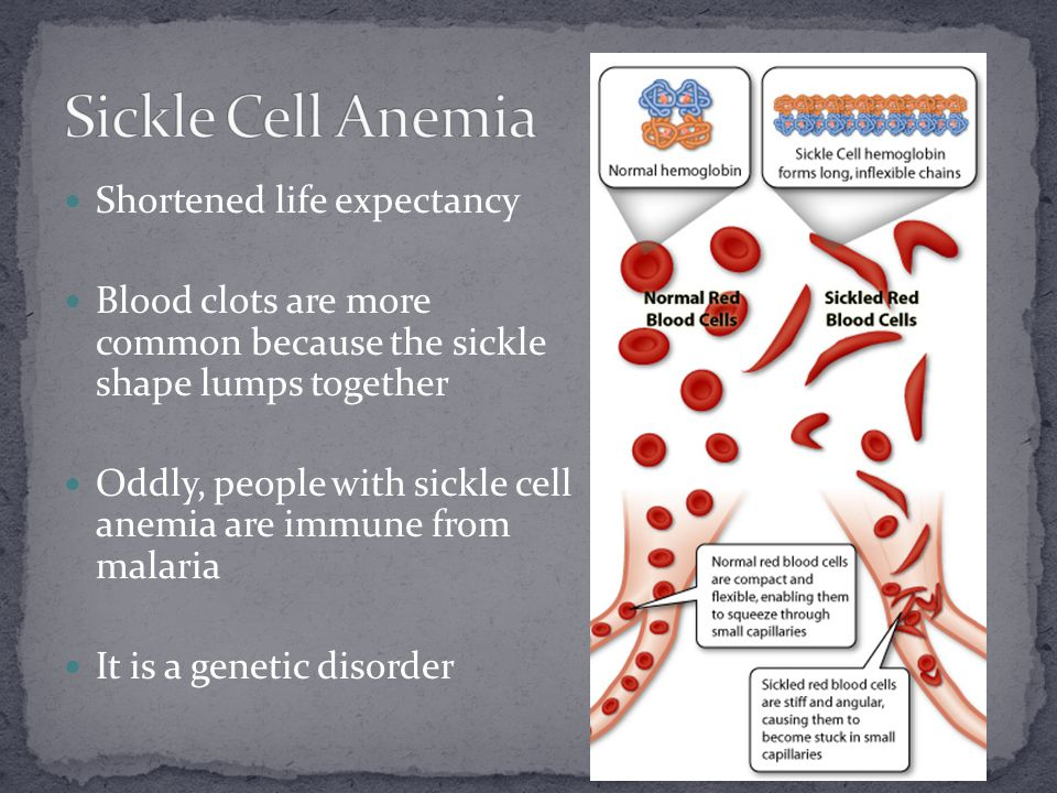Shortened life expectancy Blood clots are more common because the sickle shape lumps together Oddly, people with sickle cell anemia are immune from ma
