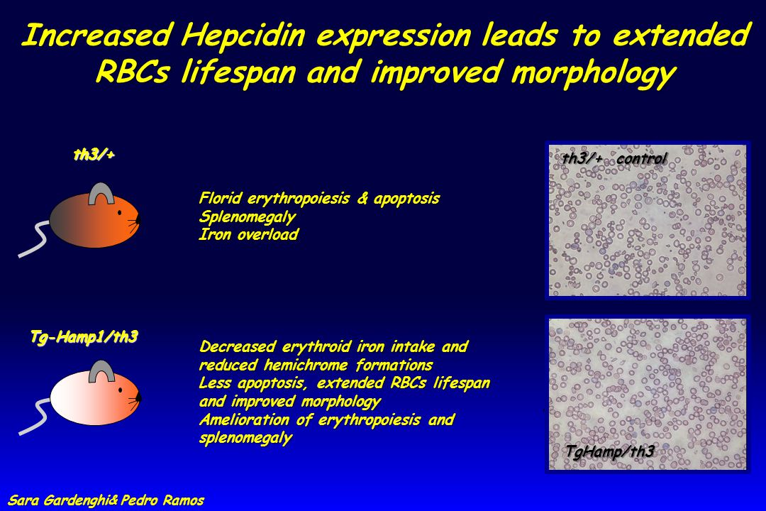 th3/+ Tg-Hamp1/th3 th3/+ control TgHamp/th3 Increased Hepcidin expression leads to extended RBCs lifespan and improved morphology Decreased erythroid