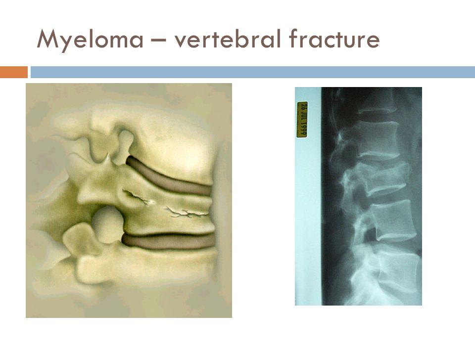 Myeloma – vertebral fracture