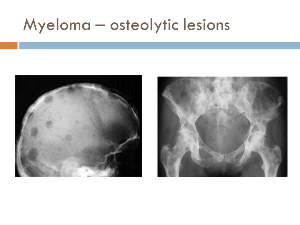 Myeloma – osteolytic lesions