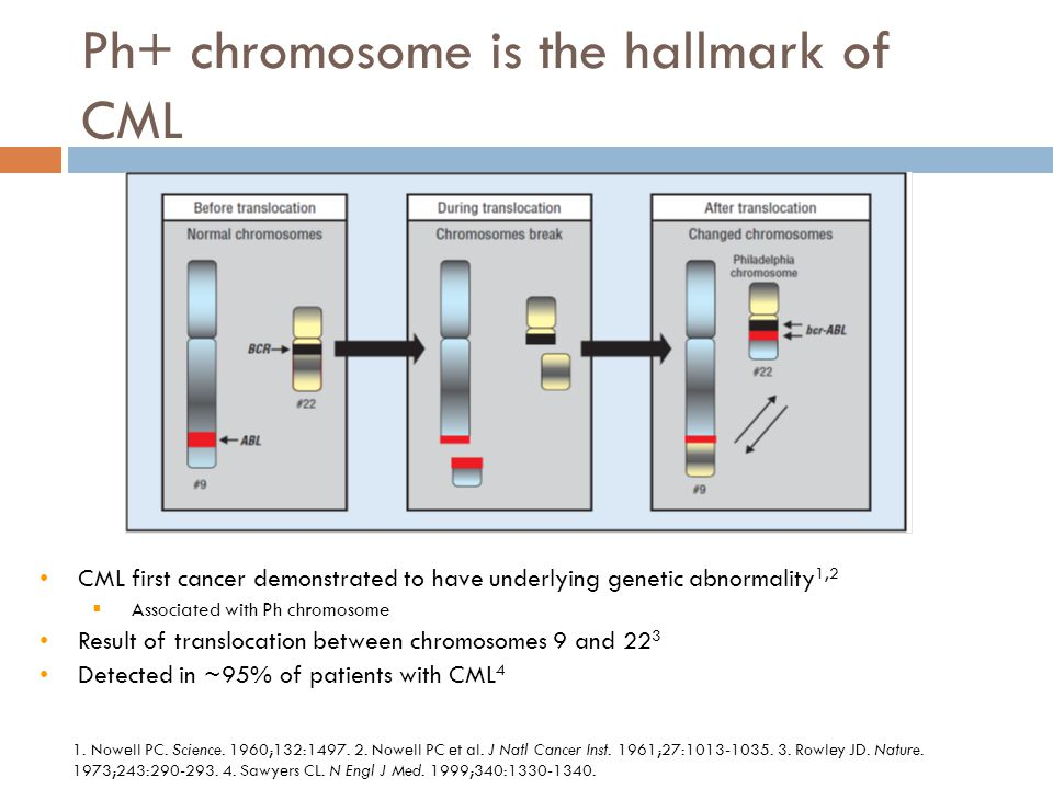 CML first cancer demonstrated to have underlying genetic abnormality 1,2  Associated with Ph chromosome Result of translocation between chromosomes 9 and 22 3 Detected in ~95% of patients with CML 4 Ph+ chromosome is the hallmark of CML 1.