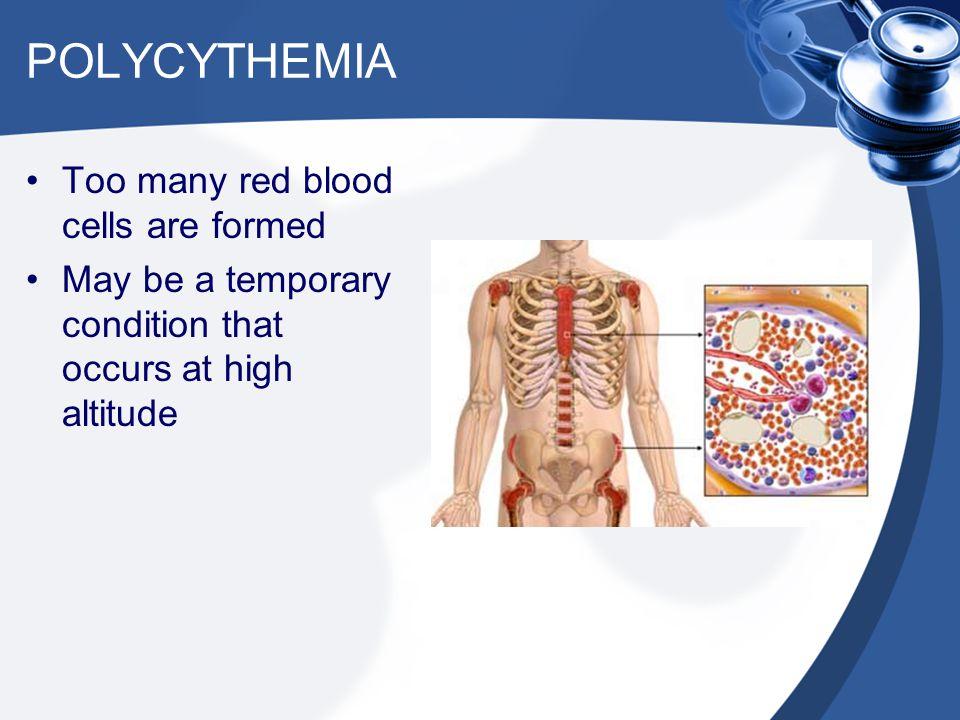 EMBOLISM Air, blood clot, cancer cells, fat, etc.