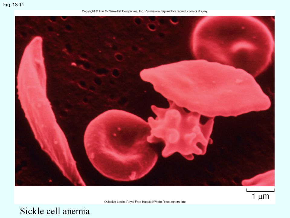 Fig. 13.11 Sickle cell anemia