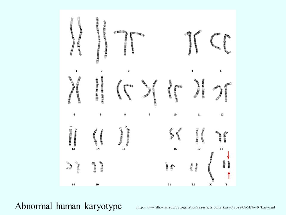 http://www.slh.wisc.edu/cytogenetics/cases/gifs/com_karyotypes/CoMNov97karyo.gif Abnormal human karyotype