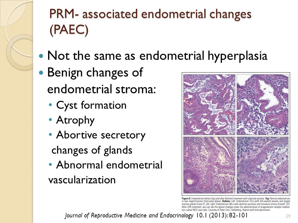 PRM- associated endometrial changes (PAEC) Not the same as endometrial hyperplasia Benign changes of endometrial stroma: Cyst formation Atrophy Abortive secretory changes of glands Abnormal endometrial vascularization 29 Journal of Reproductive Medicine and Endocrinology 10.1 (2013): 82-101