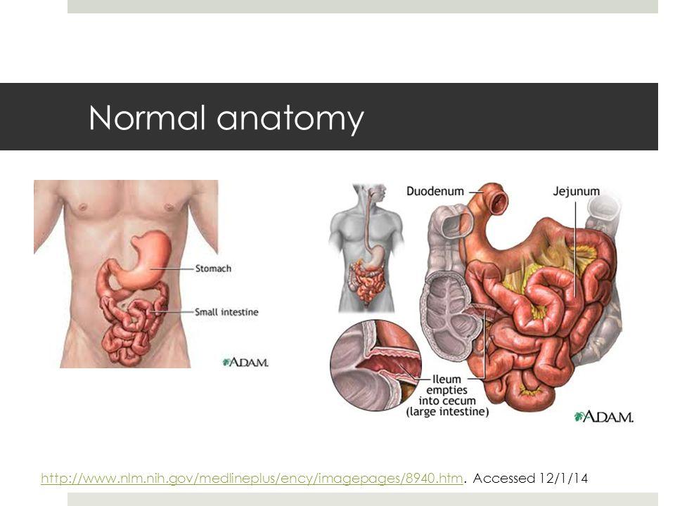 Normal anatomy http://www.nlm.nih.gov/medlineplus/ency/imagepages/8940.htmhttp://www.nlm.nih.gov/medlineplus/ency/imagepages/8940.htm.