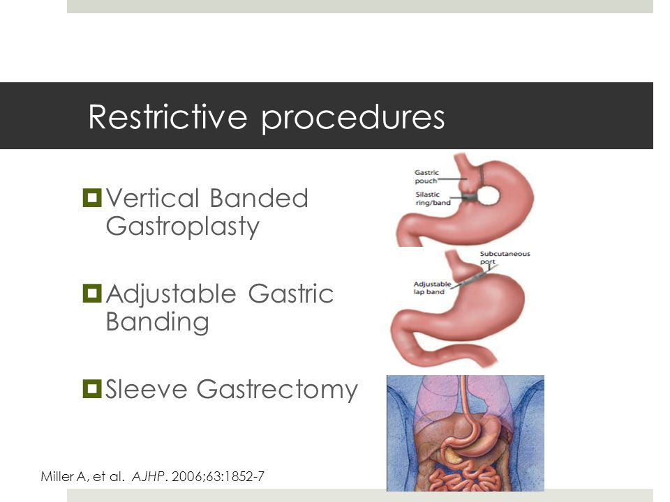 Restrictive procedures  Vertical Banded Gastroplasty  Adjustable Gastric Banding  Sleeve Gastrectomy Miller A, et al.