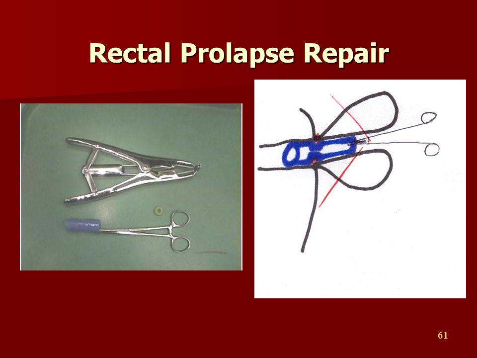 61 Rectal Prolapse Repair