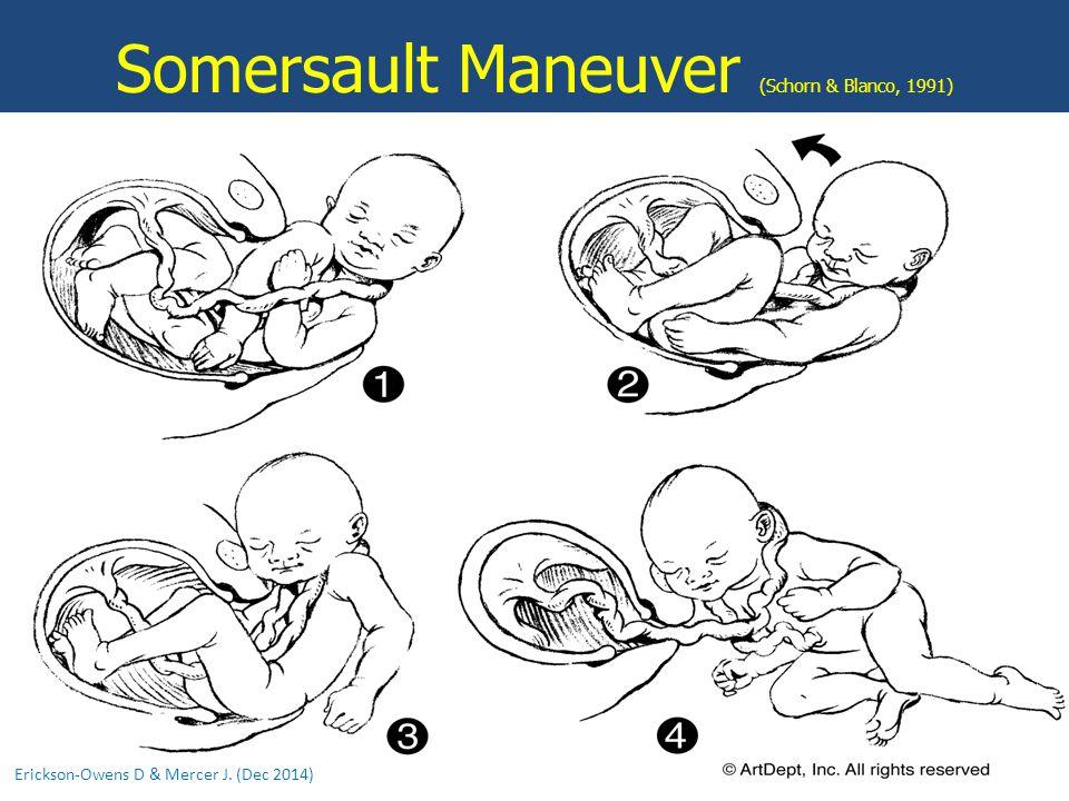 Somersault Maneuver (Schorn & Blanco, 1991) Erickson-Owens D & Mercer J. (Dec 2014)