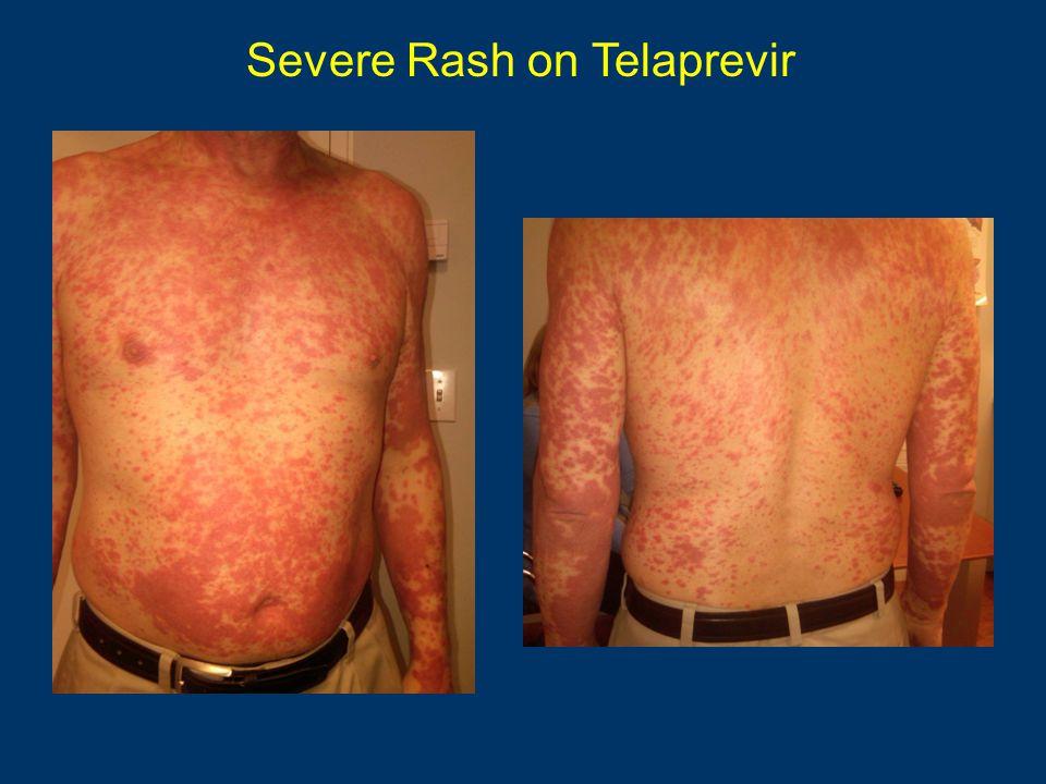 Severe Rash on Telaprevir