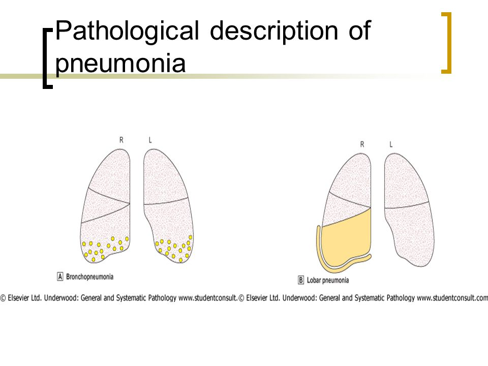 Pathological description of pneumonia