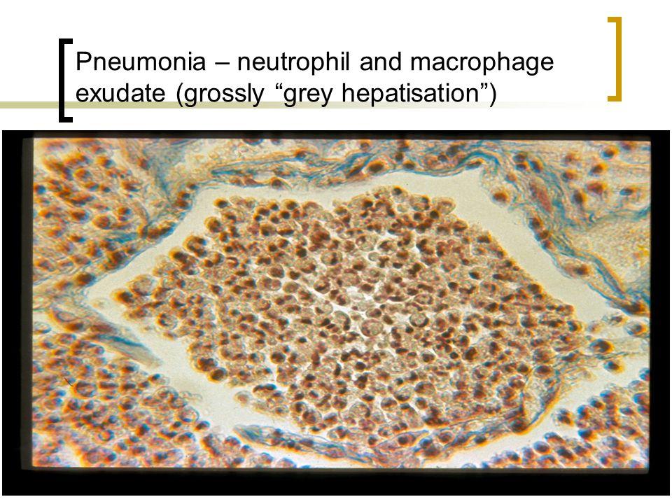 "Pneumonia – neutrophil and macrophage exudate (grossly ""grey hepatisation"")"
