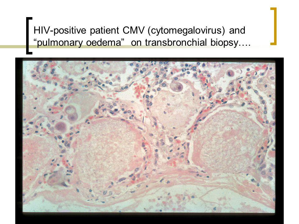 "HIV-positive patient CMV (cytomegalovirus) and ""pulmonary oedema"" on transbronchial biopsy…."