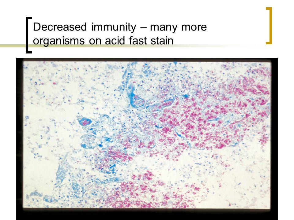 Decreased immunity – many more organisms on acid fast stain