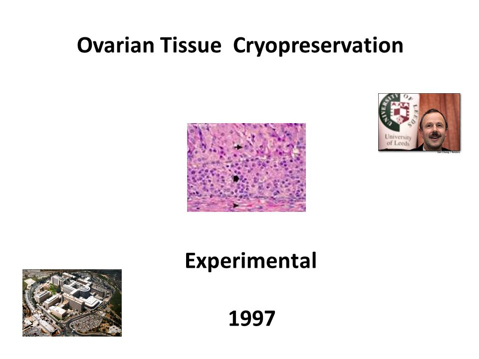 Ovarian Tissue Cryopreservation Experimental 1997