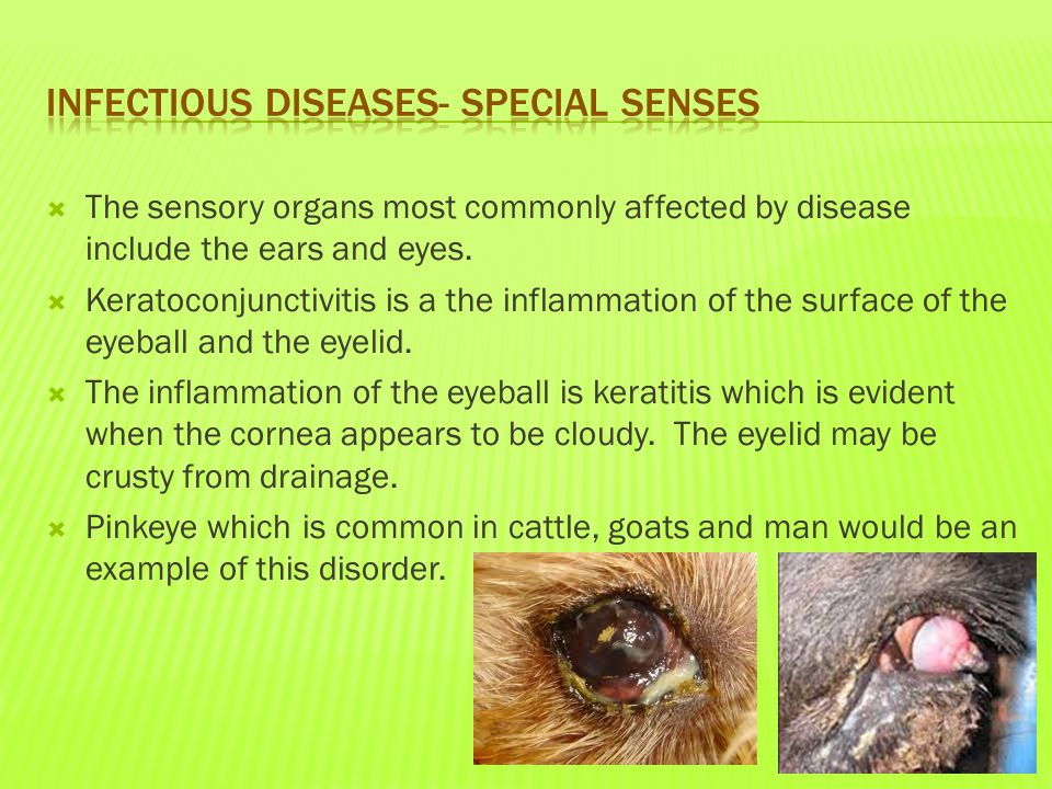  The sensory organs most commonly affected by disease include the ears and eyes.