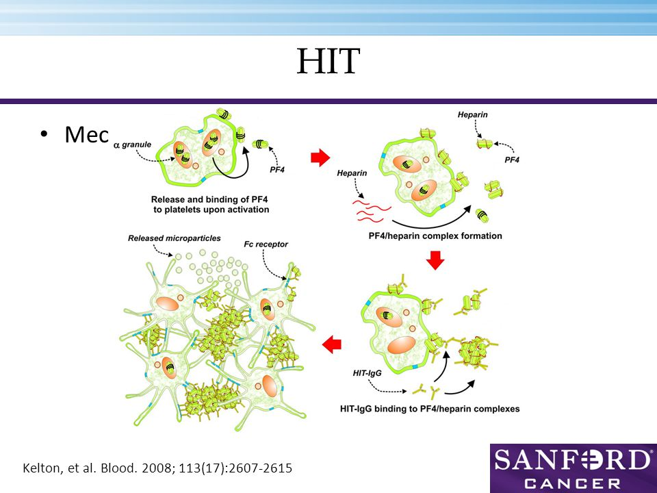 HIT Mechanism Kelton, et al. Blood. 2008; 113(17):2607-2615