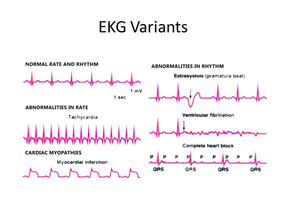 EKG Variants