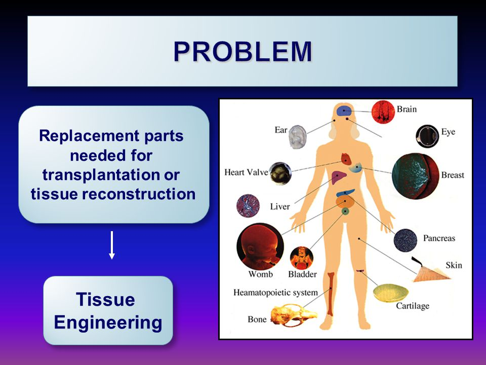Replacement parts needed for transplantation or tissue reconstruction Replacement parts needed for transplantation or tissue reconstruction Tissue Engineering Tissue Engineering PROBLEMPROBLEM