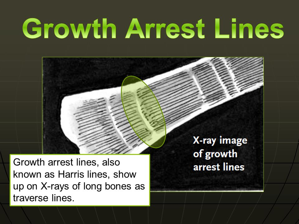 Growth arrest lines, also known as Harris lines, show up on X-rays of long bones as traverse lines.