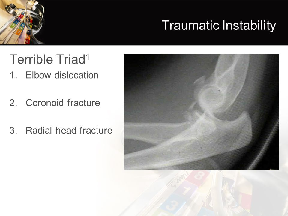 Traumatic Instability Terrible Triad 1 1.Elbow dislocation 2.Coronoid fracture 3.Radial head fracture