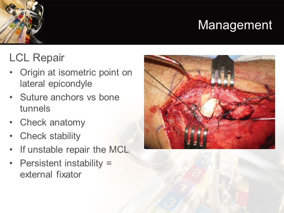 Management LCL Repair Origin at isometric point on lateral epicondyle Suture anchors vs bone tunnels Check anatomy Check stability If unstable repair