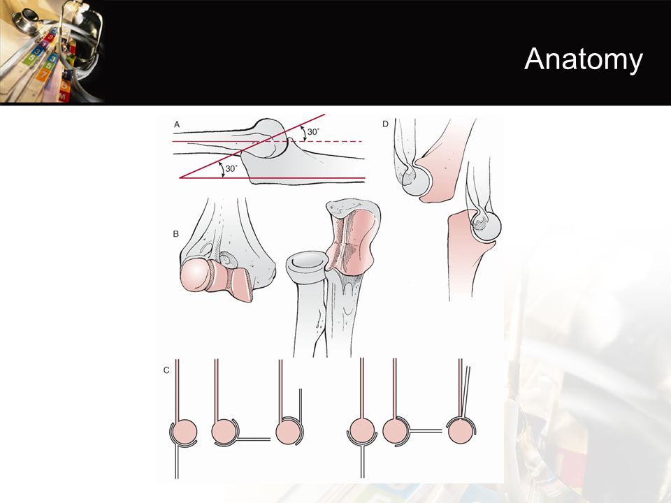 Coronoid Process Tip Body Anterolateral facet Anteromedial facet
