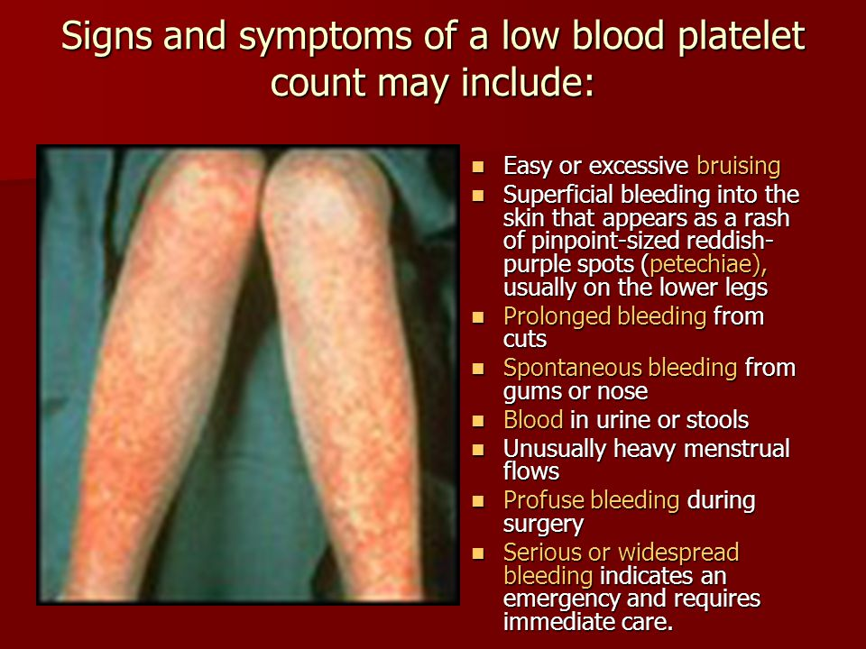 Signs and symptoms of a low blood platelet count may include: Easy or excessive bruising Easy or excessive bruising Superficial bleeding into the skin