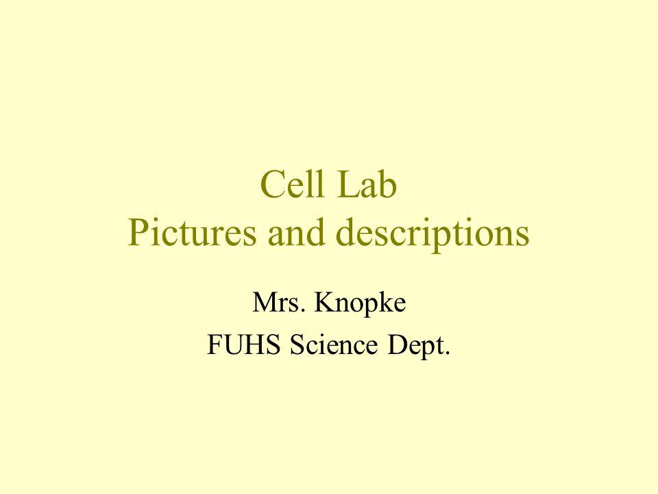 Chromoplasts- Tomato cells