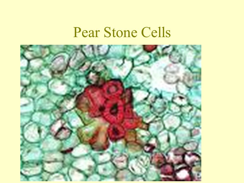 Pear Stone Cells