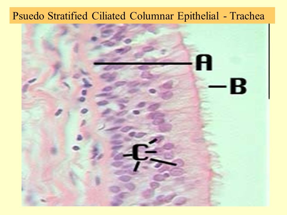 Psuedo Stratified Ciliated Columnar Epithelial - Trachea