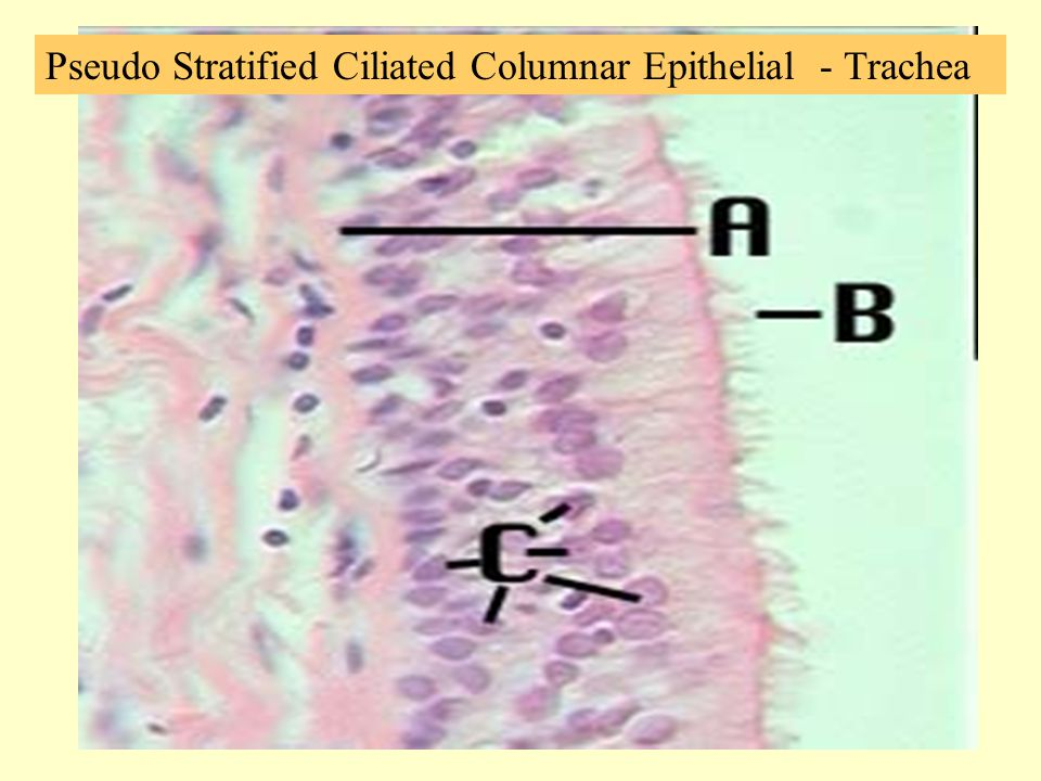 Pseudo Stratified Ciliated Columnar Epithelial - Trachea