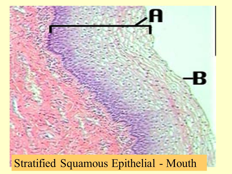 Stratified Squamous Epithelial - Mouth