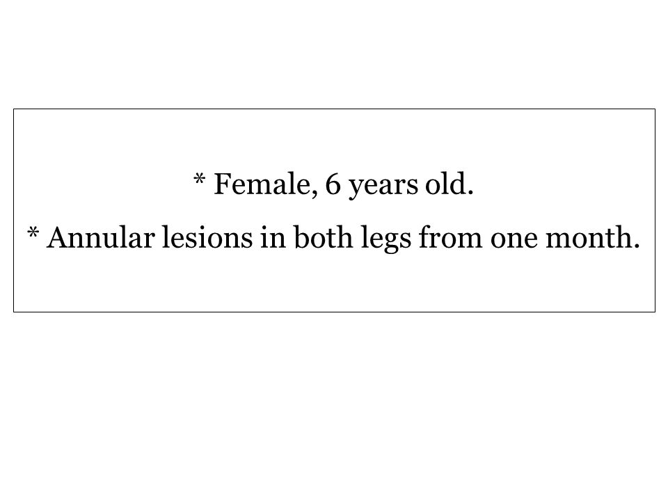 * Female, 6 years old. * Annular lesions in both legs from one month.