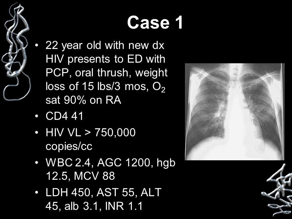 Case 1 22 year old with new dx HIV presents to ED with PCP, oral thrush, weight loss of 15 lbs/3 mos, O 2 sat 90% on RA CD4 41 HIV VL > 750,000 copies/cc WBC 2.4, AGC 1200, hgb 12.5, MCV 88 LDH 450, AST 55, ALT 45, alb 3.1, INR 1.1