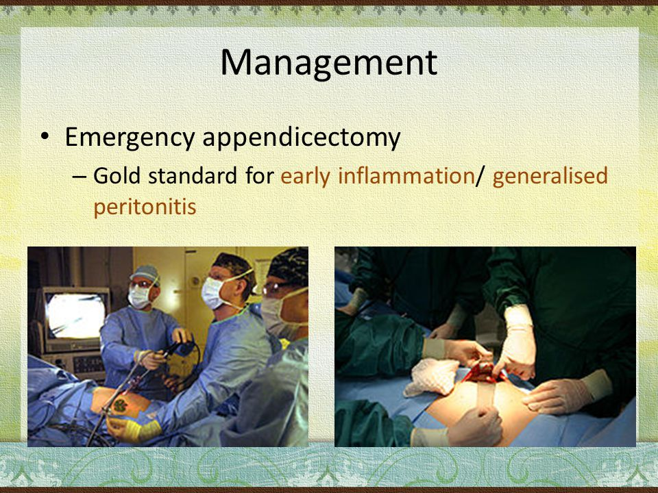 Management Emergency appendicectomy – Gold standard for early inflammation/ generalised peritonitis