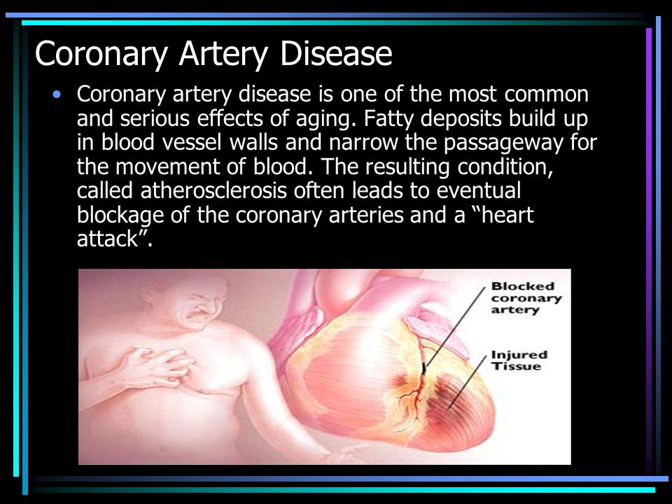 2 coronary arteries branch from the main aorta just above the aortic valve.