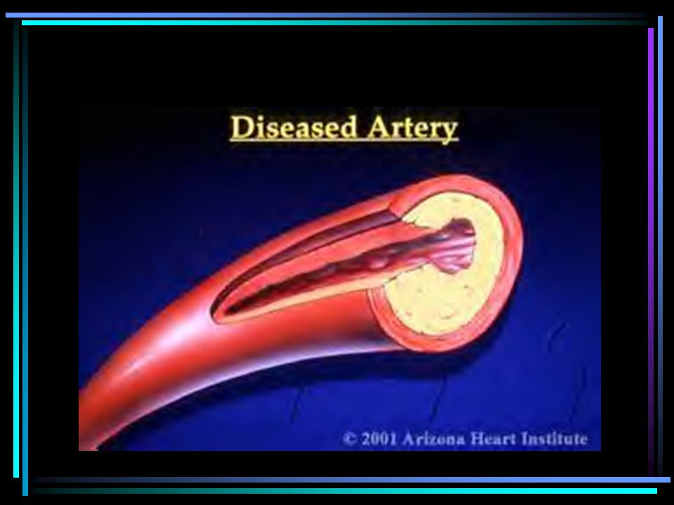 Coronary Artery Disease Coronary artery disease is one of the most common and serious effects of aging.