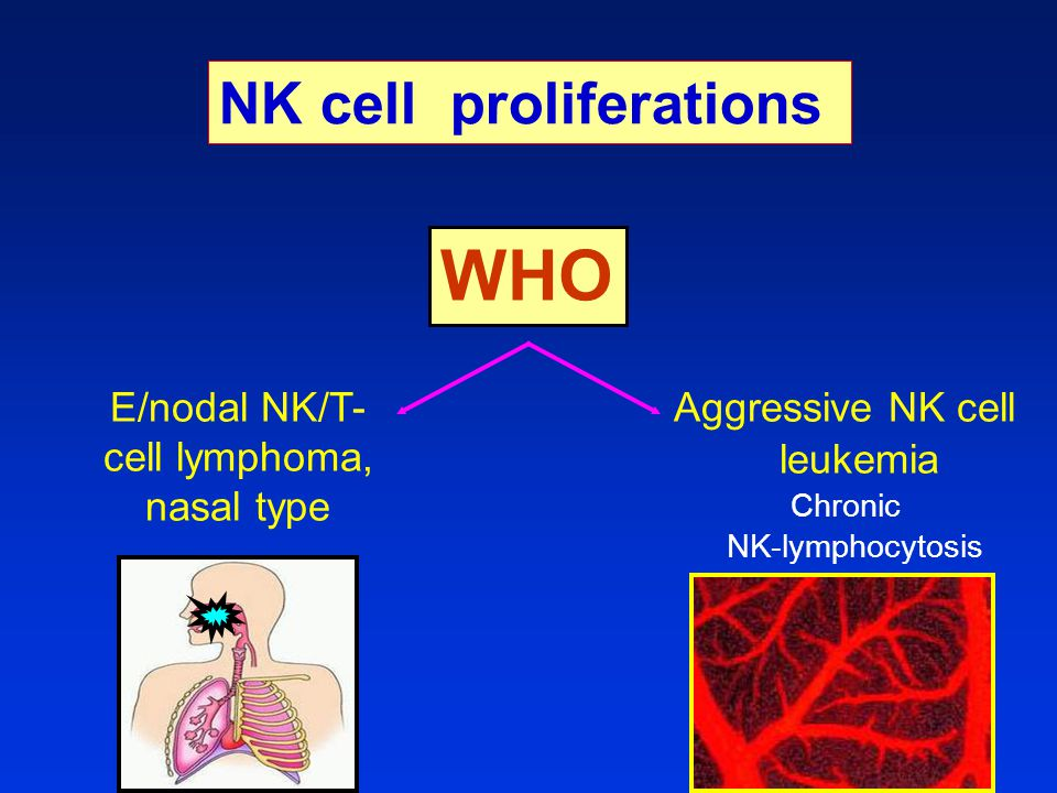WHO Aggressive NK cell leukemia Chronic NK-lymphocytosis E/nodal NK/T- cell lymphoma, nasal type NK cell proliferations