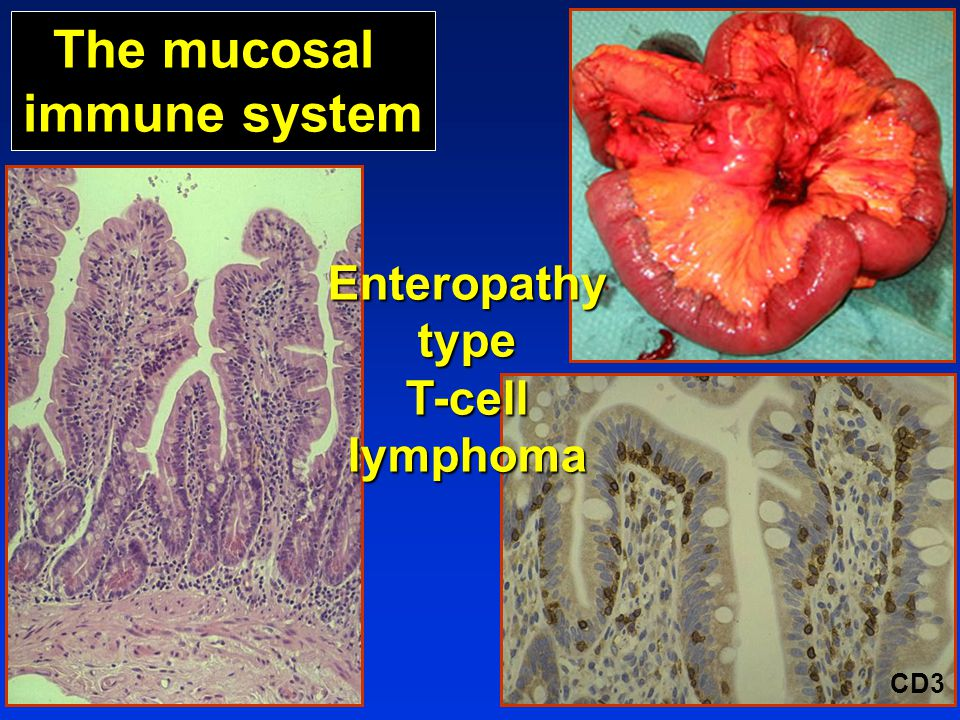 The mucosal immune system CD3 EnteropathytypeT-celllymphoma