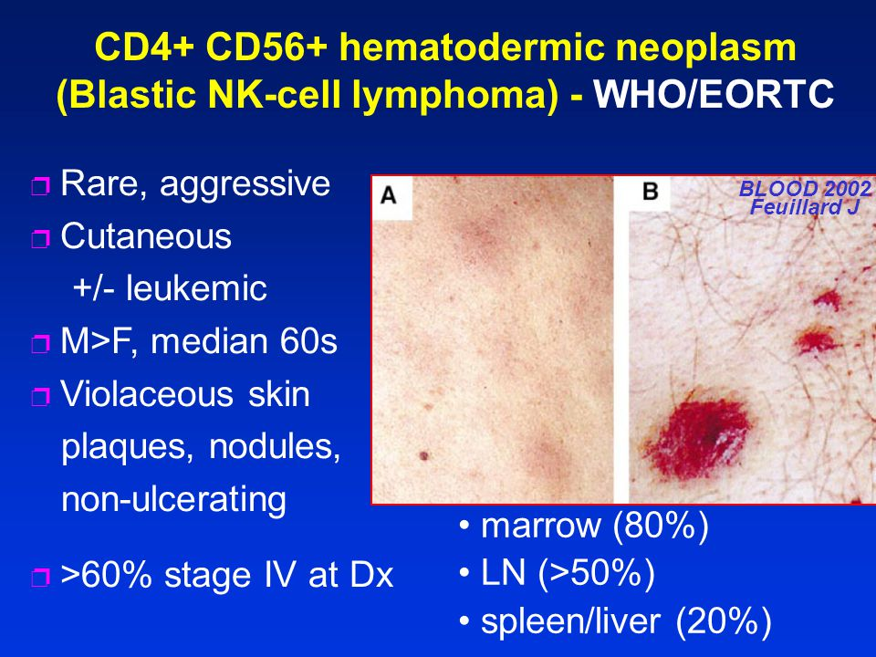 CD4+ CD56+ hematodermic neoplasm (Blastic NK-cell lymphoma) - WHO/EORTC marrow (80%) LN (>50%) spleen/liver (20%) p >60% stage IV at Dx BLOOD 2002 Feu